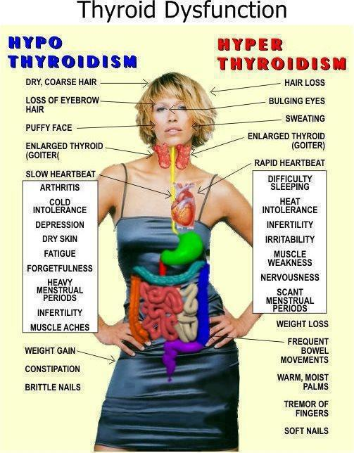 Thyroid Disfunction