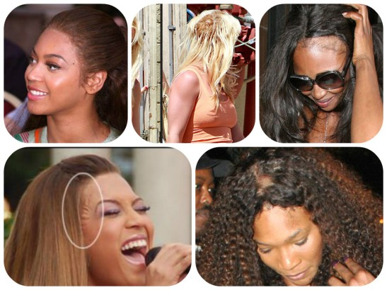 Even celebs are subject to a bad weave job... how/why is the question, but it definitely happens!