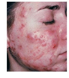 Natural Acne Hyperpigmentation Treatment